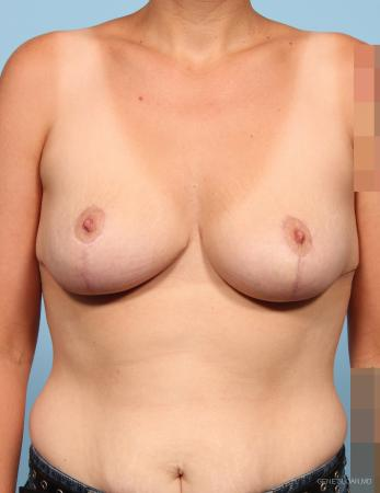 Breast Reduction: Patient 5 - After Image 1