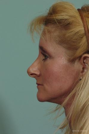 Rhinoplasty: Patient 2 - Before and After Image 2