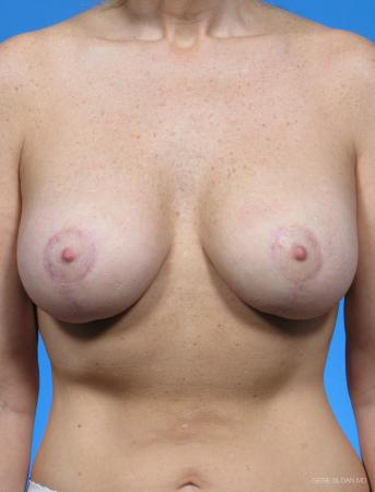 Breast Augmentation With Lift: Patient 5 - After Image