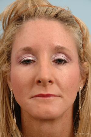 Rhinoplasty: Patient 2 - After Image 1