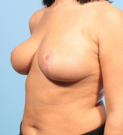 Breast Implant Revised: Patient 1 - After Image 2