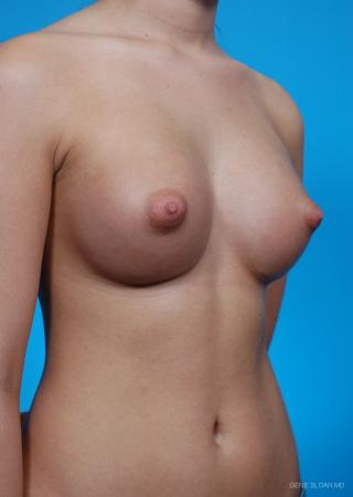 Breast Augmentation: Patient 18 - After Image 2