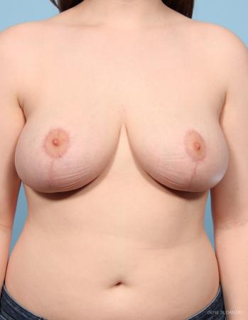 Breast Reduction: Patient 4 - After Image 1