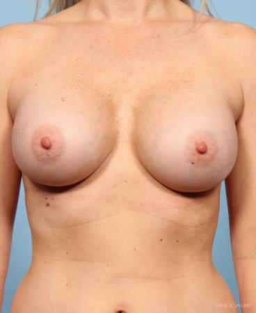 Breast Augmentation: Patient 8 - After Image 1