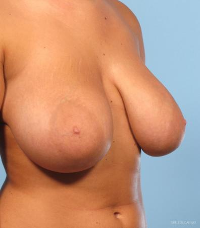 Breast Reduction: Patient 2 - Before and After Image 2