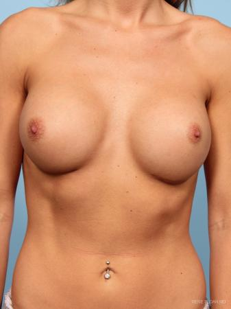 Breast Augmentation: Patient 15 - After Image 1