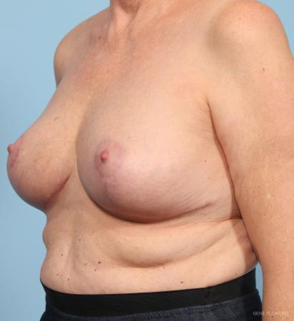 Breast Reduction: Patient 3 - After Image 2