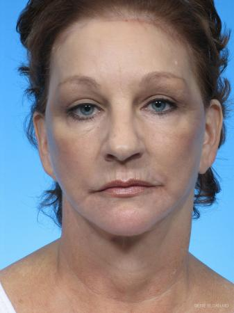 Facelift: Patient 2 - After Image