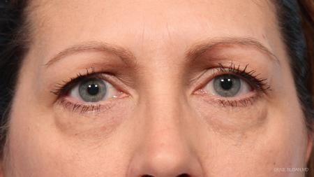 Blepharoplasty: Patient 9 - Before Image 1