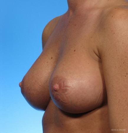 Breast Augmentation: Patient 2 - After Image 2
