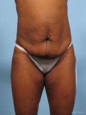 Abdominoplasty: Patient 2 - Before Image