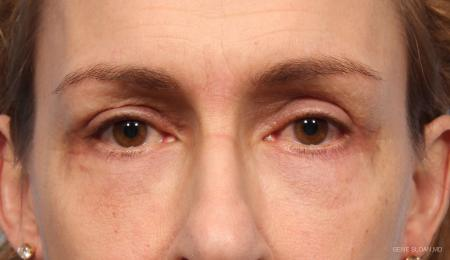Blepharoplasty: Patient 8 - After Image