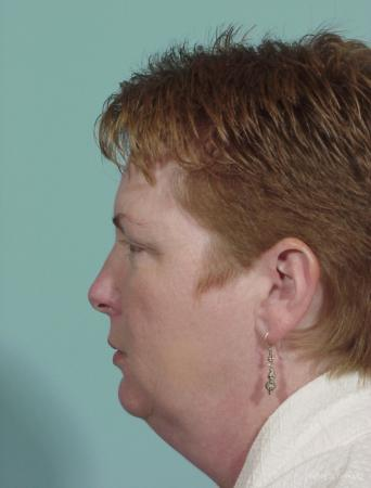 Neck Lift: Patient 1 - Before and After Image 2