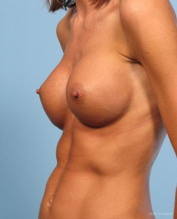 Breast Augmentation: Patient 9 - After Image 2