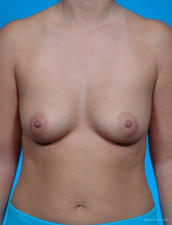 Breast Augmentation: Patient 1 - Before Image 1