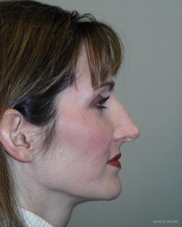 Rhinoplasty: Patient 1 - Before and After Image 2