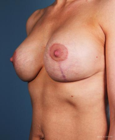Breast Implant Revised: Patient 3 - After Image 2