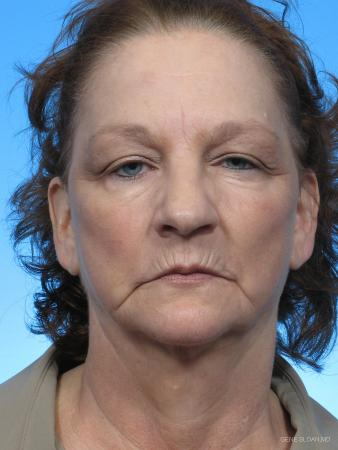 Facelift: Patient 2 - Before Image