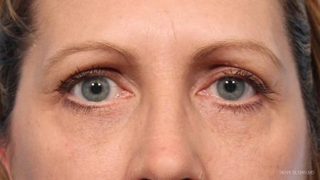 Blepharoplasty: Patient 9 - After Image 1