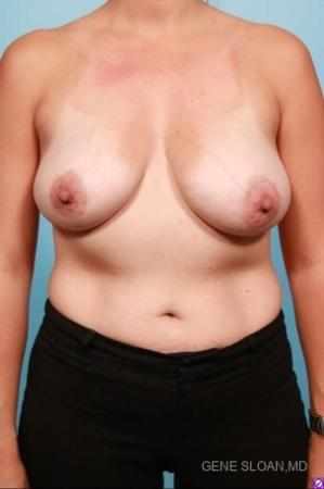 Breast Lift: Patient 6 - Before Image 1