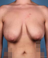 Breast Lift: Patient 1 - Before Image
