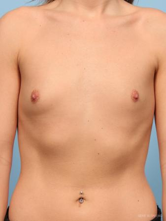 Breast Augmentation: Patient 15 - Before Image 1