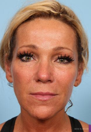 Fat Transfer - Face: Patient 1 - After Image 1