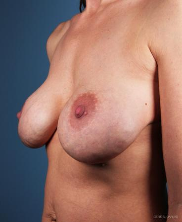 Breast Implant Revised: Patient 3 - Before and After Image 2