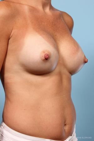Breast Augmentation: Patient 7 - After Image 2