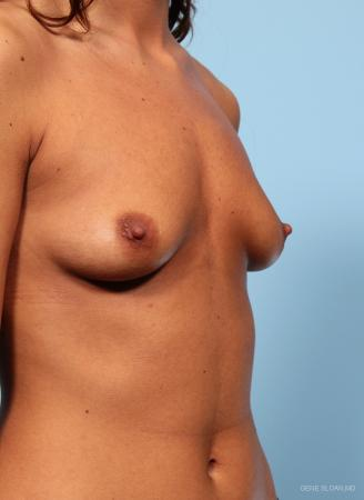 Breast Augmentation: Patient 13 - Before and After Image 2