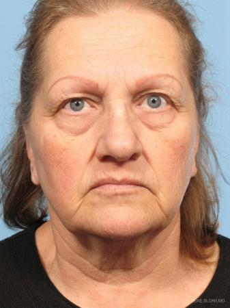 Facelift: Patient 6 - Before Image