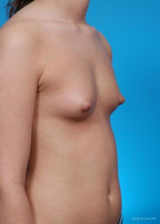 Breast Augmentation: Patient 11 - Before and After Image 2