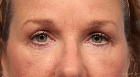 Blepharoplasty: Patient 6 - After Image