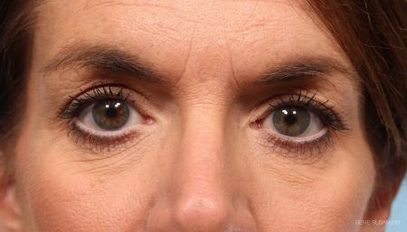 Blepharoplasty: Patient 2 - Before Image