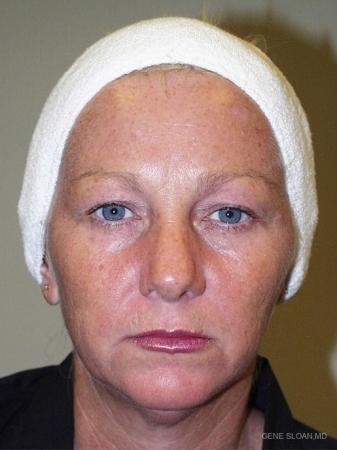 Facelift: Patient 4 - Before Image 1