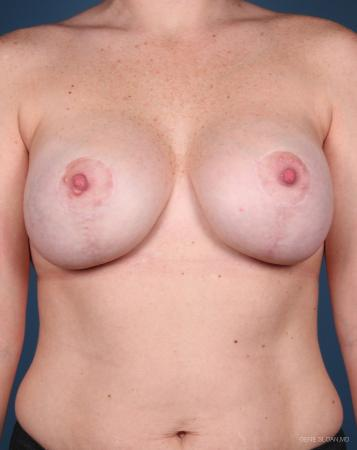 Breast Augmentation With Lift: Patient 6 - After Image 1