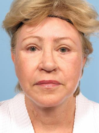 Facelift: Patient 1 - After Image