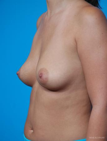 Breast Augmentation: Patient 1 - Before and After Image 2