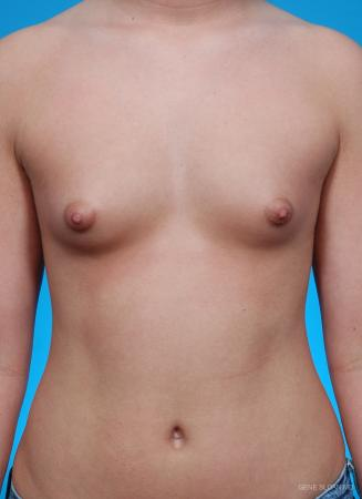 Breast Augmentation: Patient 18 - Before Image 1
