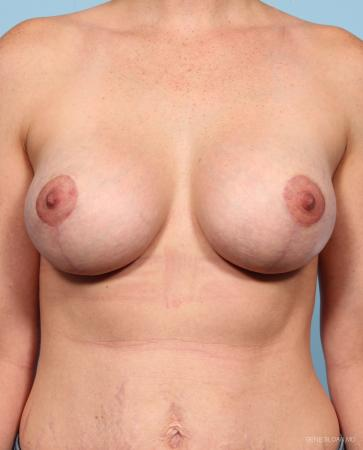 Breast Augmentation With Lift: Patient 1 - After Image 1