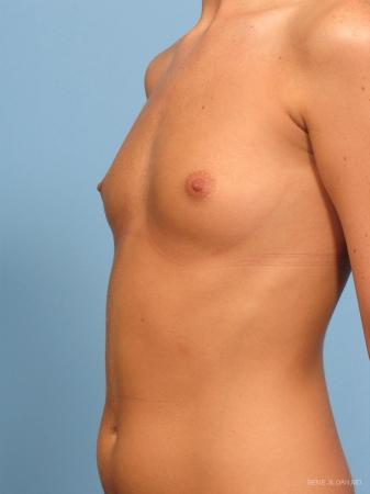 Breast Augmentation: Patient 14 - Before and After Image 2