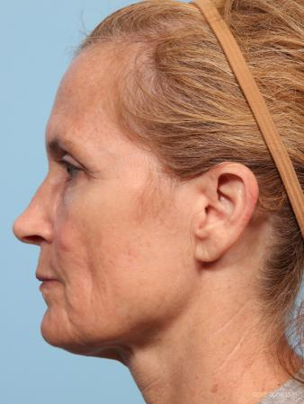 Facelift: Patient 7 - Before and After Image 3