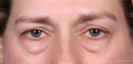 Blepharoplasty: Patient 1 - Before Image