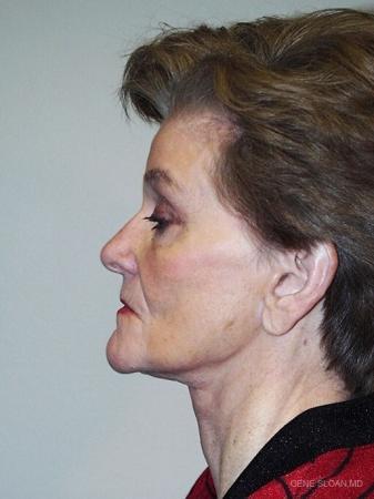 Facelift: Patient 3 - After Image 2