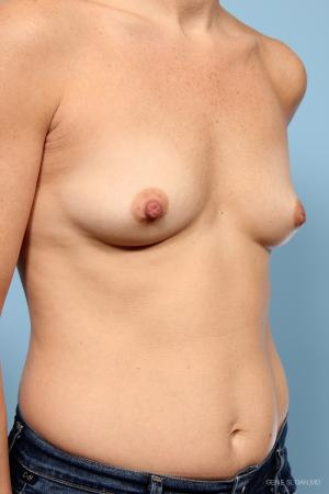 Breast Augmentation: Patient 7 - Before and After Image 2