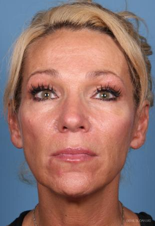 Fat Transfer - Face: Patient 1 - Before Image