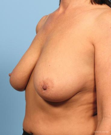 Breast Lift: Patient 4 - Before and After Image 2