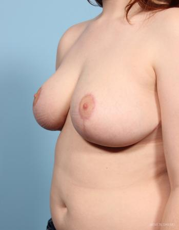 Breast Reduction: Patient 4 - After Image 2