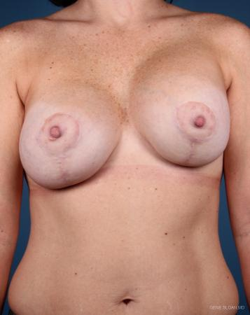 Breast Implant Revised: Patient 5 - Before Image 1
