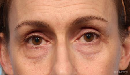 Blepharoplasty: Patient 8 - Before Image